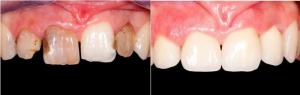 Crowns, Composite Fillings
