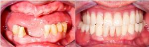 Lower Bridge, Upper Denture